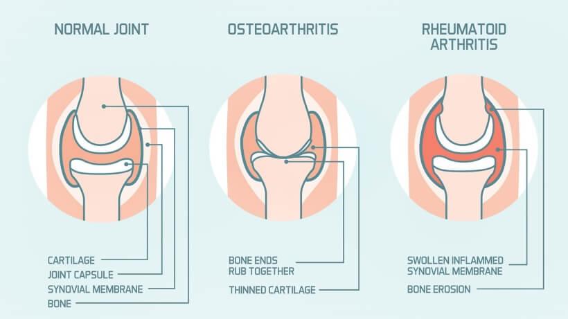 ZWEI GESICHTER DER ARTHRITIS